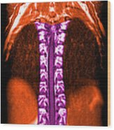 Mri Of Normal Thoracic Spinal Cord Wood Print