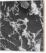 Mycoplasma Pneumoniae Sem Wood Print
