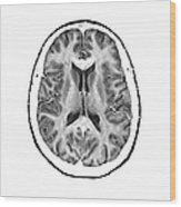 Normal Cross Sectional Mri Of The Brain Wood Print