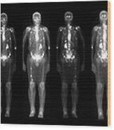 Nuclear Medicine Bone Scan Wood Print
