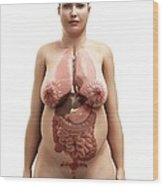 Obese Woman's Organs, Artwork Wood Print