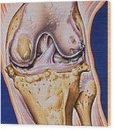 Osteoarthritic Knee Wood Print
