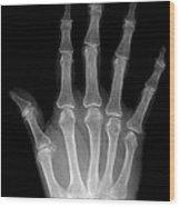 Osteoporosis And Degenerative Arthritis Wood Print