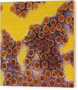 Papillomavirus Particles, Coloured Tem Wood Print