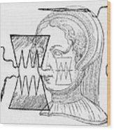 Par� Suture, 1500s Wood Print