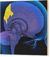 Parietal Lobe In The Brain, Artwork Wood Print