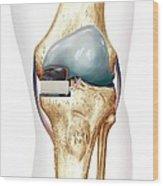 Partial Knee Replacement, Artwork Wood Print