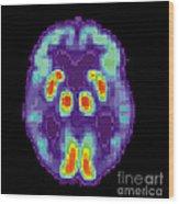 Pet Scan Of Alzheimers Disease Brain, 2 Wood Print