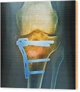 Pinned Broken Knee, X-ray Wood Print by