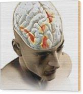Placebo Effect In The Brain, Artwork Wood Print