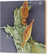 Protozoan Infecting Macrophage, Sem Wood Print