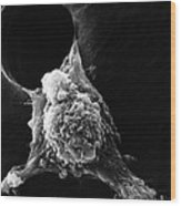 Pseudopodia Sem Wood Print by Science Source