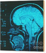 Radiology Angiography Of Brain Wood Print