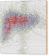 Radionuclide Scanning Of A Normal Liver Wood Print