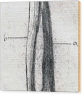 Radius And Ulna Wood Print