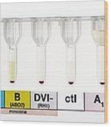 Rhesus Test On Blood: Negative Result Wood Print