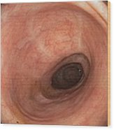 Scars In Colon After Ulcerative Colitis Wood Print