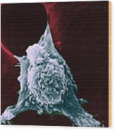 Sem Of Metastasis Wood Print by Science Source