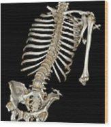 Skeletal Reconstruction Wood Print