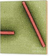 Tobacco Mosaic Virus, Tem Wood Print