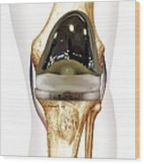 Total Knee Replacement, Artwork Wood Print