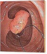 Tubular Polyp In The Colon Wood Print by Gastrolab