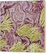 Uterine Cancer, Sem Wood Print