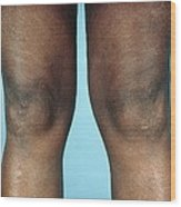 View Of Knees Affected By Osteoarthritis Wood Print