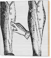 William Harvey Woodcut Showing Venous Valves Wood Print