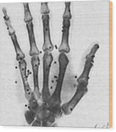 X-ray Of A Hand With Buckshot Wood Print
