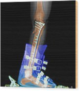 X-ray Of Broken Bones In Ski Boot Wood Print