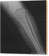 X-ray Of Broken Leg Wood Print