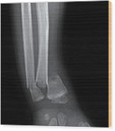 X-ray Of Wrist Fracture Wood Print