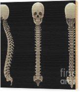 3d Rendering Of Human Vertebral Column Wood Print