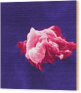 Cancer Cell Death, Sem 6 Of 6 Wood Print