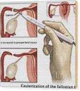 Cauterization Of The Fallopian Tubes Wood Print
