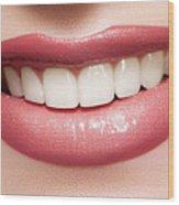 Esthetics Of Smile  Dental Veneers Vs Orthodontic Treatment Wood Print