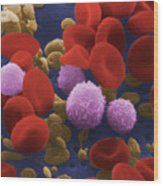 Human Blood Cells Wood Print by NIH / Science Source