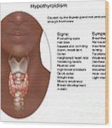 Hypothyroidism, Illustration Wood Print