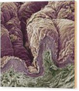 Skin Tissue, Sem Wood Print by Steve Gschmeissner
