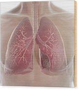 Lungs Wood Print
