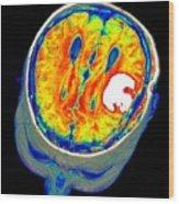 Brain Tumour, 3d-mri Scan Wood Print by Pasieka