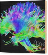 Fiber Tracts Of The Brain, Dti Wood Print