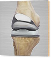 Knee Replacement Wood Print