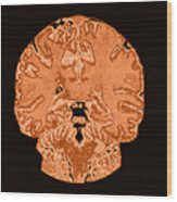 Coronal View Mri Of Normal Brain Wood Print by Medical Body Scans