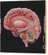 3d Rendering Of Human Brain Wood Print
