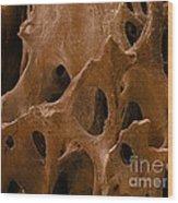 Human Bone, Sem Wood Print