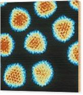 Adenovirus Tem Wood Print