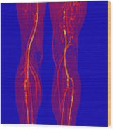 Atherosclerosis, Ct Angiogram Wood Print
