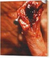 Blocked Artery. Wood Print